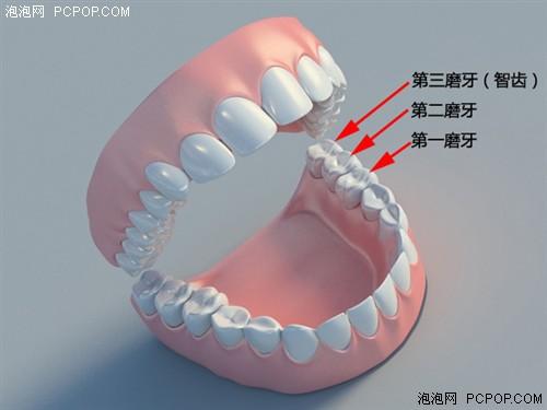智齿牵连第二磨牙出问题很常见