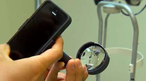 EyeGo可通过iPhone快速诊断眼部疾病!